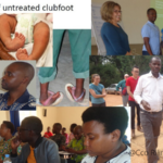 Healthcare officers Received Certificates On Treatment Of Clubfoot Deformity